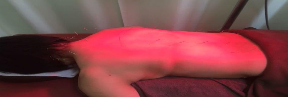 神崎郡市川町 鍼灸と筋膜療法の前田接骨院